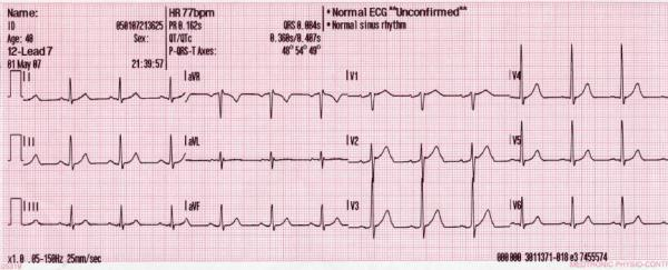 12_lead_generated_sinus_rhythm