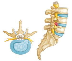 Herniated intervertebral disc compressing a lumbar nerve root.